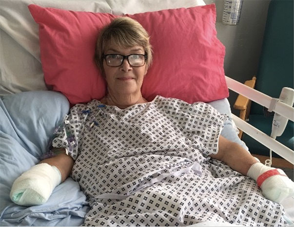 Kim Smith, glad to be alive, in hospital following her quadruple amputations