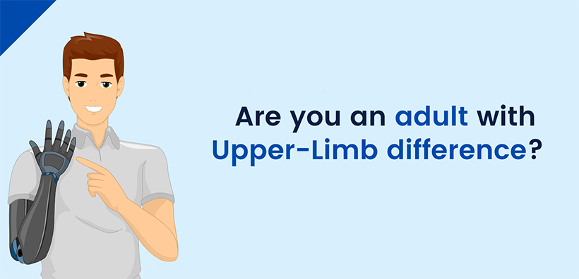 Useful research into upper-limb prostheses